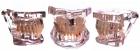 Демонстрационная модель зубов с патологиями